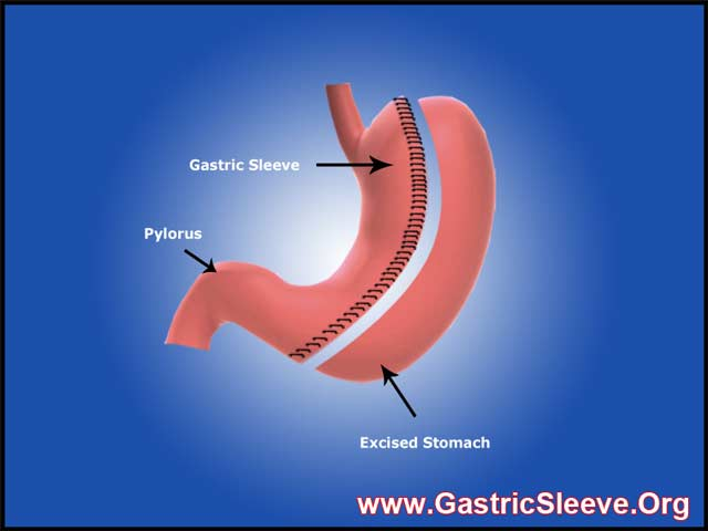 Lap Band vs Gastric Sleeve – Reversibility, Time Involved, and ...